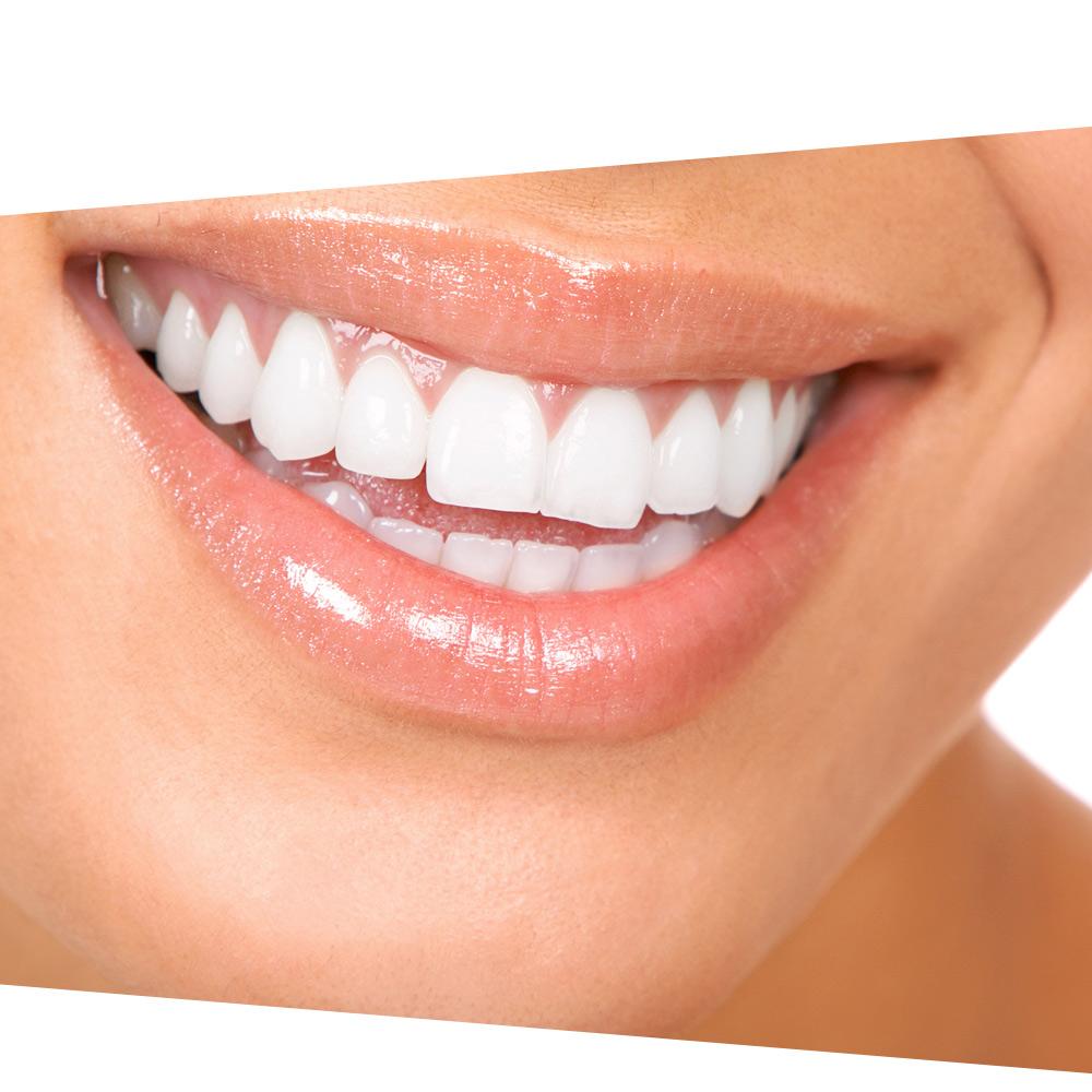 estetska stomatologija dentalharmony