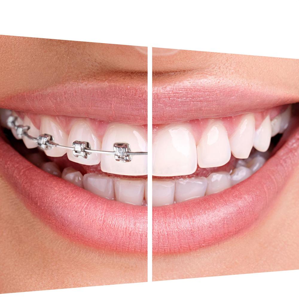 ortodoncija usluge dental harmony